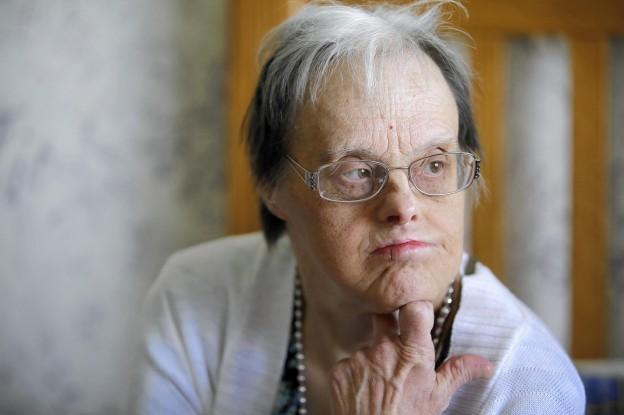 سندروم داون و بیماری آلزایمر