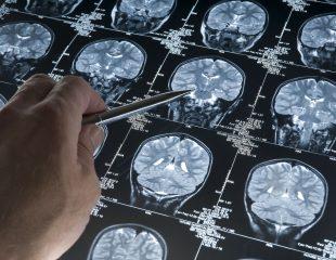مراحل بیماری آلزایمر - 7 مرحله این بیماری