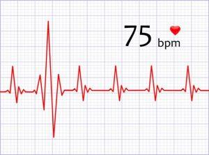 آریتمی - بیماری قلبی و ریتم غیر طبیعی قلب