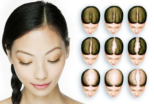 اندازه گیری ریزش موی زنان