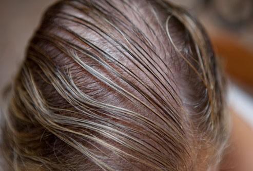 یافتن علت های ریزش مو