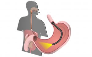 آندوسکوپی فوقانی برای تشخیص سوزش سر دل و ریفلاکس