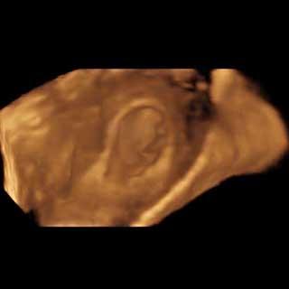تصویر سه بعدی هفته ششم بارداری