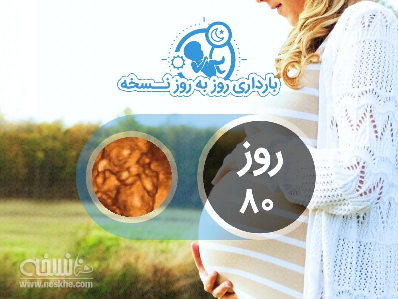 روز هشتادم بارداری