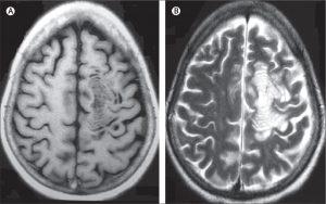 بیماری شیلدر : کودکان و مولتیپل اسکلروزیس