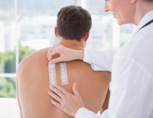 تست پوستی آلرژی