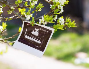 بارداری طبیعی و علائم آن