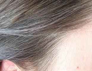 خاکستری شدن مو