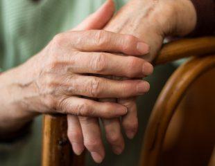آرتروسکوپی برای آرتریت روماتوئید