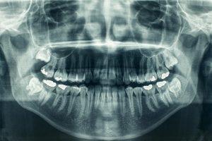 اشعه ایکس از دندان