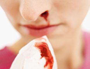 درست یا غلط : برای توقف خونریزی بینی سرتان را به عقب خم کنید