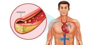 کلسترول LDL