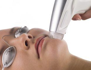 استفاده از لیزر برای بازسازی پوست