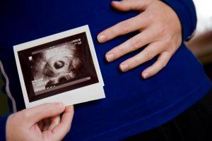 اولین تصویر برداری در دوران بارداری با استفاده از سونوگرافی
