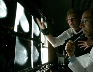 موارد جدید در تحقیقات سرطان سینه و درمان آن وجود دارد؟
