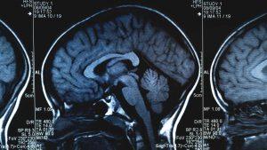 تشخیص تومورهای مغز و نخاع در بزرگسالان
