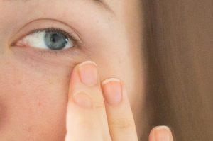 حلقه های تیرۀ ارثی زیر چشم