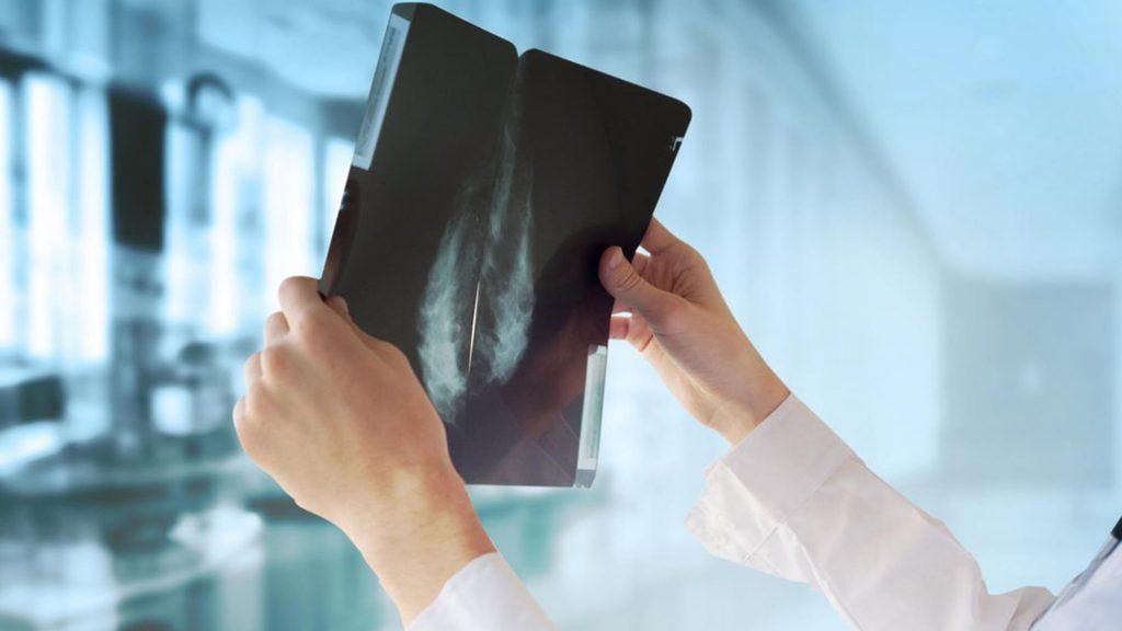 غربالگری و یافتن سرطان پستان