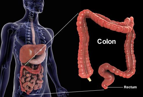 سرطان کولورکتال چیست؟