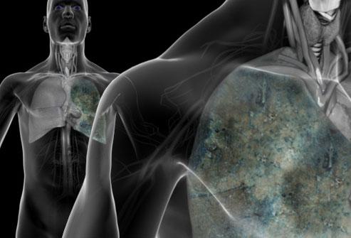 سرطان ریه: تصویر بزرگ