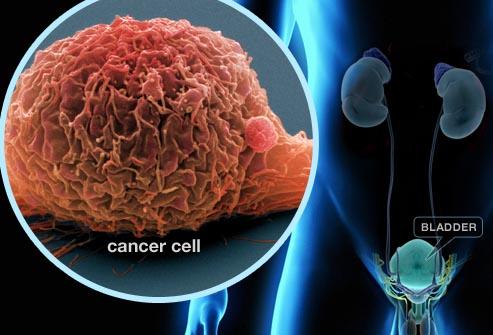 سرطان مثانه چیست؟