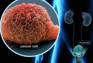راهنمای تصویری سرطان مثانه