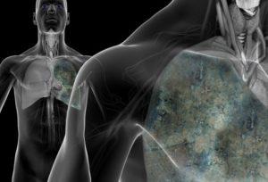 راهنمای تصویری سرطان ریه