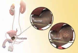 راهنمای تصویری سرطان پروستات