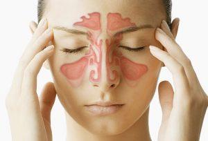 سینوزیت : علائم، تشخیص، درمان