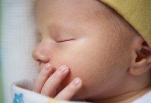 نکاتی در مورد پوست نوزاد تازه متولد شده