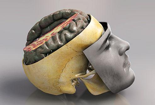 آسیب به مغز و سر