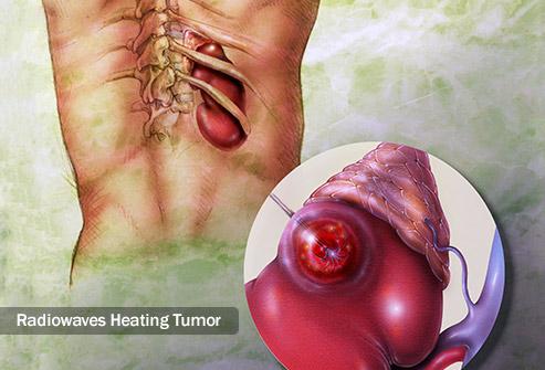 تخریب کننده های تومور