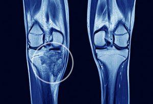 راهنمای تصویری سرطان استخوان