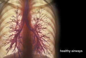 راهنمای بصری برای بیماری انسداد مزمن مجاری تنفسی