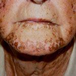 شناخت بیماری آدیسون