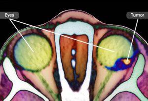 راهنمای تصویری سرطان های چشم