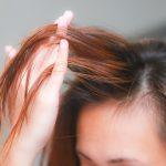 درمانهایی برای موهای کم پشت؛ آیا مفید هستند؟