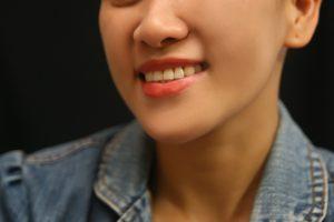 7 نکته موثر برای اینکه چگونه چربی صورت را از بین ببریم؟