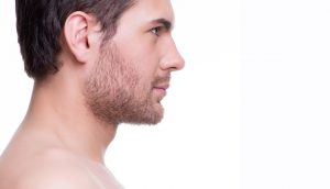 مراحل کاشت مو به روش BHT