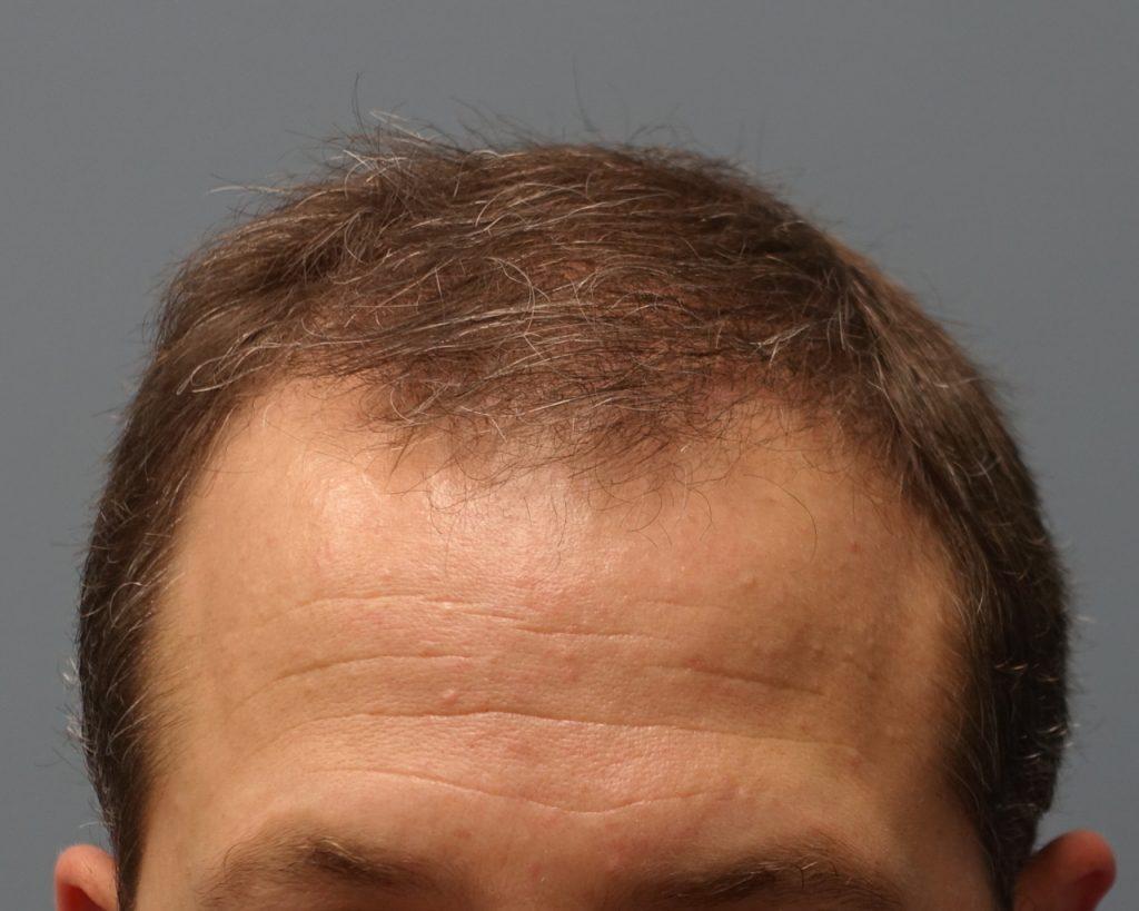 مراحل کاشت مو به روش HRT
