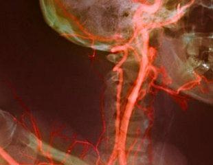 بیماری سرخرگ کاروتیدی : دلایل ، علائم ، تست ها و درمان