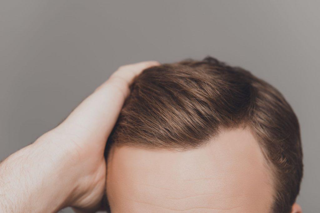 روش های مختلف کاشت مو