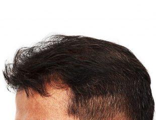 تفاوت ترمیم مو با کاشت مو