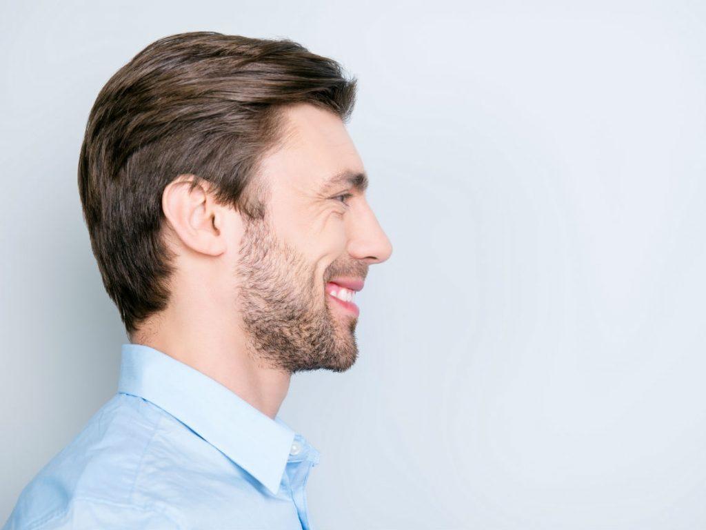 کاشت ریش و سبیل به روش FUE