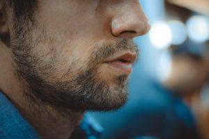 کاشت ریش و سبیل به روش SUT