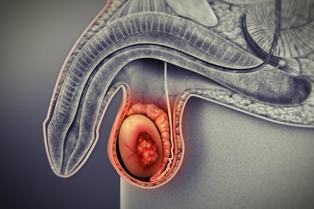 سرطان بیضه - سرطان نادر اما قابل درمان