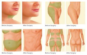 1- لیپوساکشن (Liposuction)