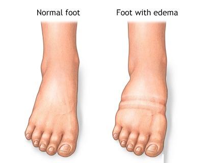 ادم یا Edema چیست؟ 2