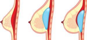 2- بزرگ کردن سینه (Breast Augmentation)