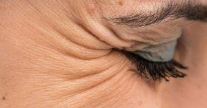 کراوسفیت یا خطوط گوشه چشمی